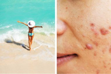 Yes, Your Acne Is Worse in the Summer-but Here's How You Can Get Rid of It