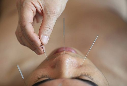 Bee-Based Acupuncture Causes One Woman to Die