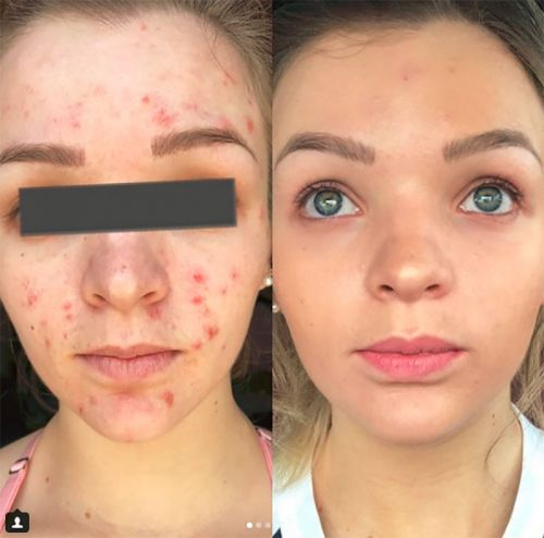 Houston's Kerigan Pike Shares Her Cystic Acne Routine