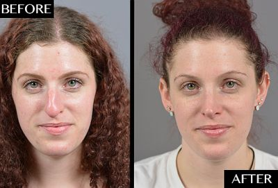 Here's What Getting a Nose Job Is Really Like