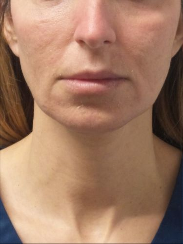 How Expert Injectors Treat Wrinkles in Four Areas of the Face