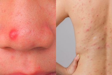 What the Acne on Every Part of Your Body Is Trying to Tell You