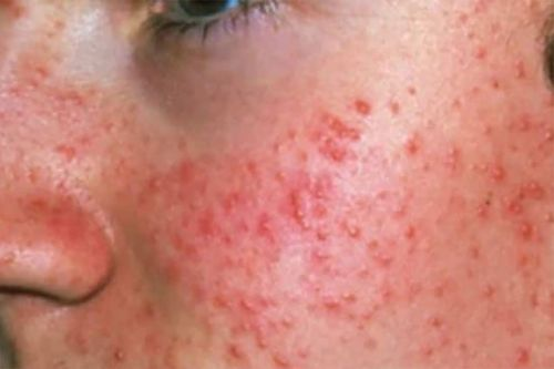 Five Myths About Acne That You Must Understand!