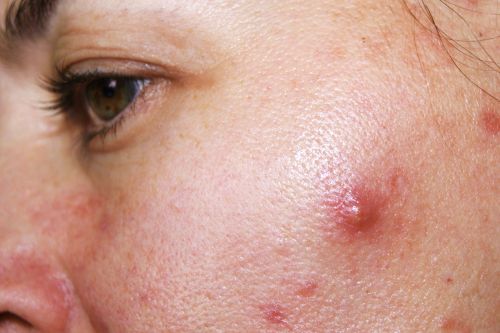 How To Get Rid of Cystic Acne, Sometimes Overnight
