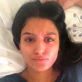 1 Acid Burn Victim Took a Makeup-Free Selfie to Show What Recovery Really Looks Like