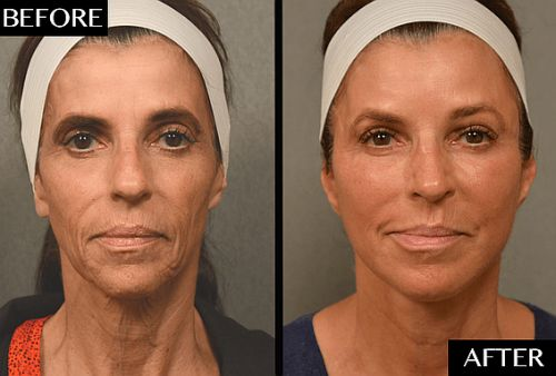 An Often-Overlooked Facial Rejuvenation Procedure Bought This Woman 10-15 Years