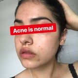 "This Inspiring Skin-Positive Influencer Calls Her Acne ""A Blessing In Disguise"""