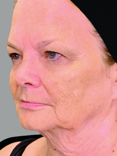 Is Fat Transfer the Future of Anti-Aging? This Expert Says Yes