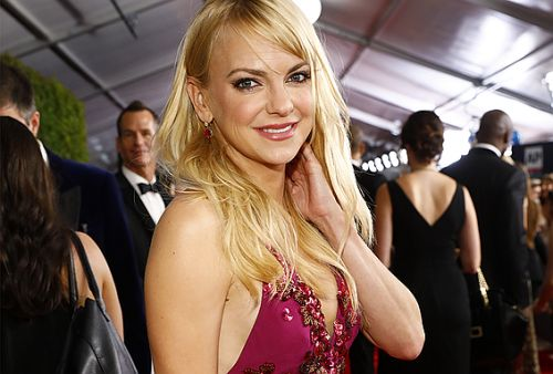 Anna Faris Reveals the All the Plastic Surgery She's Had in Her New Book
