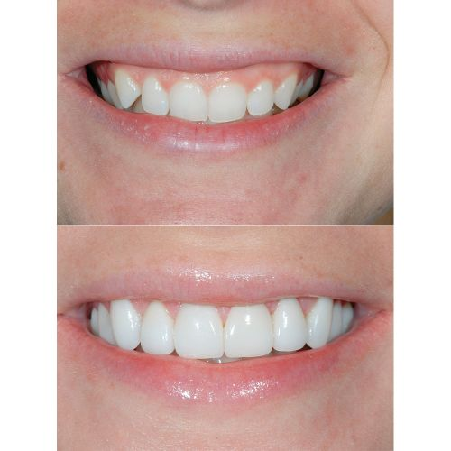 How to Prevent Gum Disease and What to Do If It's Too Late