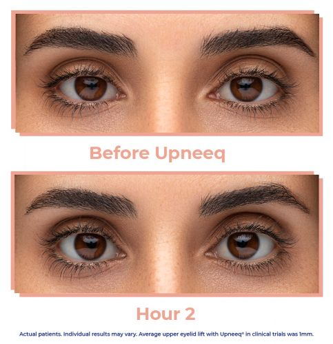 This New Eye Drop Lifts Droopy Eyelids Without Surgery