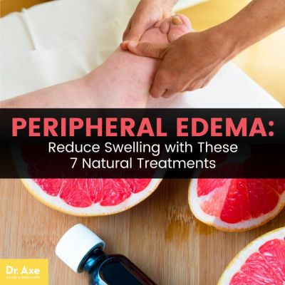 Peripheral Edema: 7 Natural Treatments to Reduce Swelling