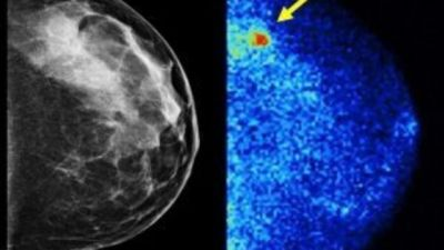 3-D Mammograms And Molecular Breast Imaging - Personalized Approaches To Breast Cancer Screening