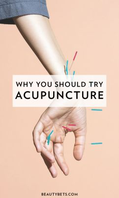 Why You Should Try Acupuncture