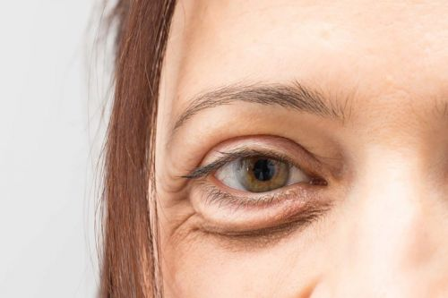 Beauty SOS: Why Concealer Can Make Your Dark Circles Look Worse