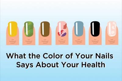 What the Color of Your Nails Says About Your Health