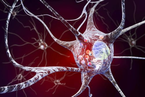 AC Immune picks up Phase 2-ready drug for Parkinson's in $58M deal with Affiris