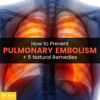Pulmonary Embolism Prevention + 5 Natural Remedies
