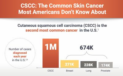 Have You Heard of Cutaneous Squamous Cell Carcinoma?