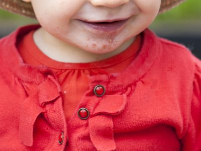 What Are the Symptoms of Hand, Foot and Mouth Disease, & How Is it Treated?
