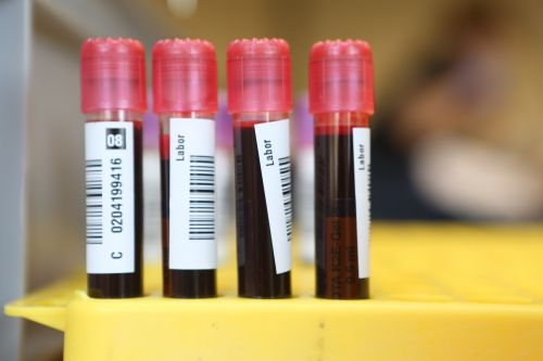 How To Donate Blood During The Coronavirus Pandemic, Because Yes, It's Needed