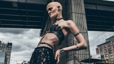 Model With Rare Genetic Disorder Is A Brilliant Example Of Inclusion